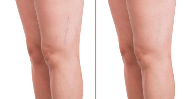 Spider-Vein-Treatment