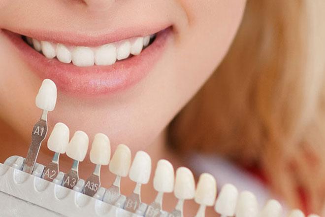 Dental-Veneers-Cost