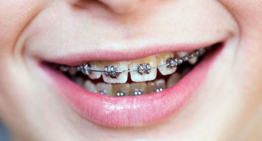 how long does it take to put on braces