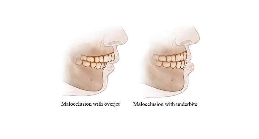 Overbite And Underbite