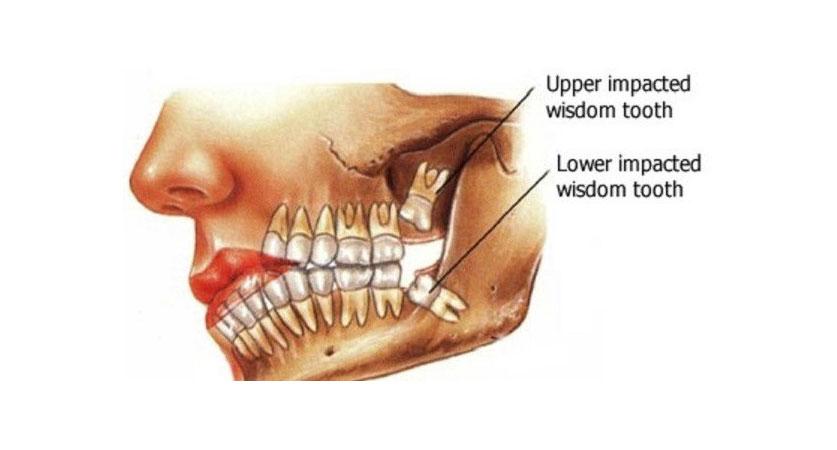 wisdom tooth hole